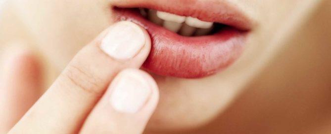 ¿Por qué aparecen llagas en la boca?