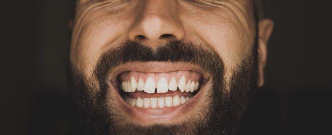 Cómo solucionar los espacios entre dientes